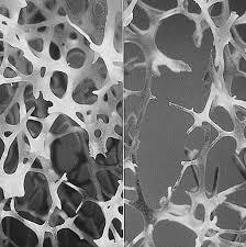 קנאביס ואוסטאופורוזיס - קנאביס כתרופה לאוסטאופורוזיס