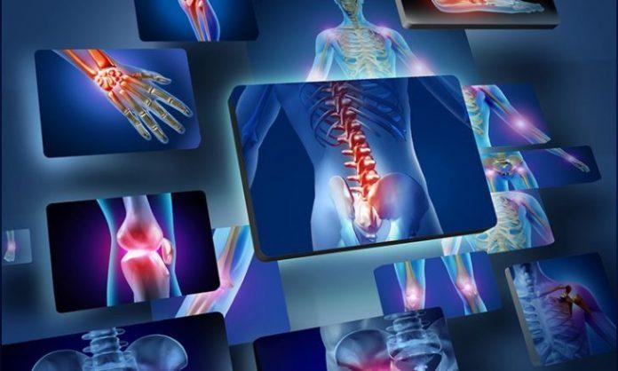 סי בי די CBD לטיפול בדלקת פרקים - cbd קנאביס נגד דלקת פרקים - דלקות מפרקים
