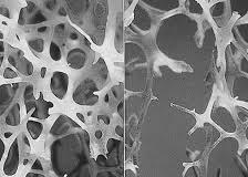 קנאביס ואוסטאופורוזיס - קנאביס כתרופה לאוסטאופורוזיס קנאביס ואוסטאופורוזיס - קנאביס כתרופה לאוסטאופורוזיס