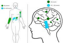 שמן סי בי די לטיפול בפרקינסון CBD - שמן קנאביס תמצית שמן סי בי די