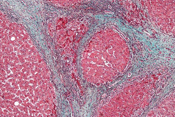 THC לטיפול בשחמת הכבד THC נגד שחמת - שמן קנאביס