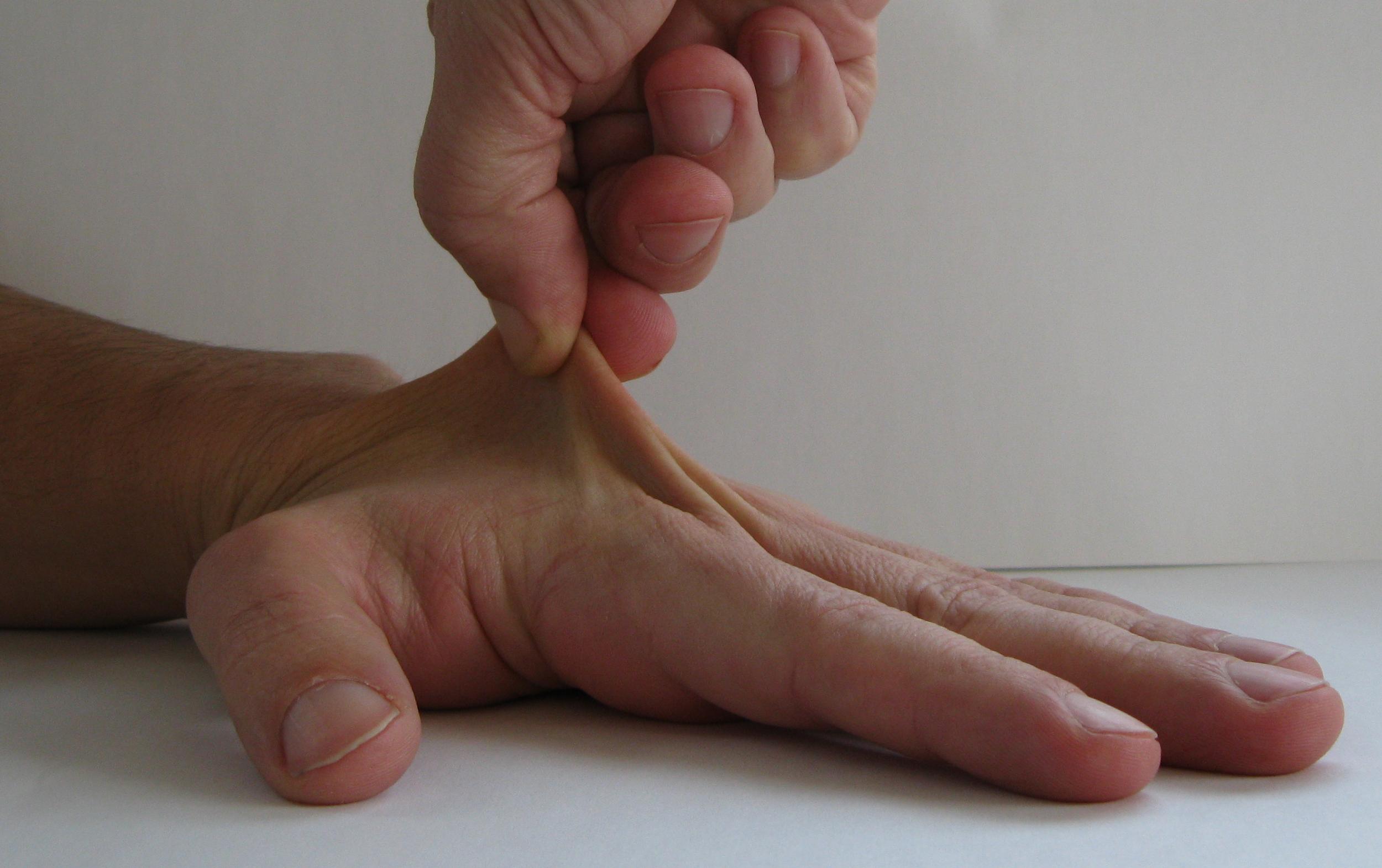 שמן קנאביס נגד מחלות עור