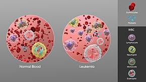 קנאביס רפואי ולוקמיה - שמן קנאביס קנאביס וסרטן דם לוקמיה